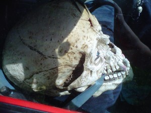 right side view of skull in front seat
